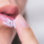 How Can I Get Rid of Cold Sores Quickly?